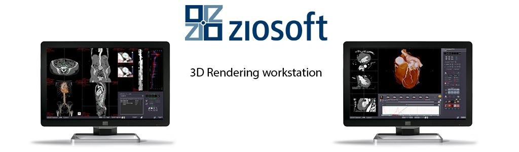 slide_Ziosoft